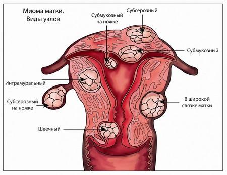 Виды узлов миомы матки